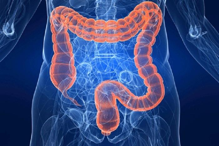 Cura cancro colon