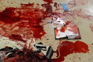 attentato sinagoga gerusalemme 2